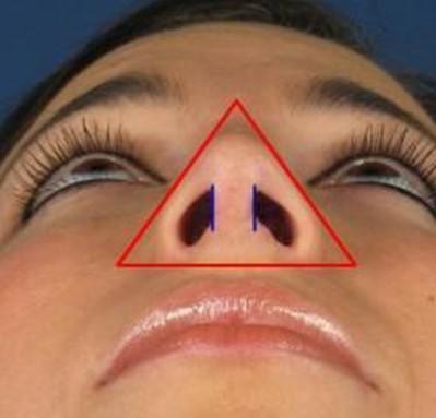 насальная проекция нос