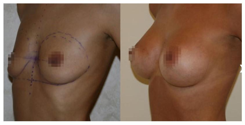 андрей харьков мамопластика отзывы