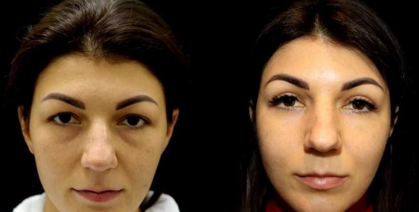 блефаропластика отзывы фото до и после